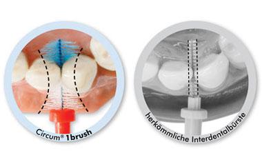 Circum Interdentalbürste versus herkömmliche Bürste