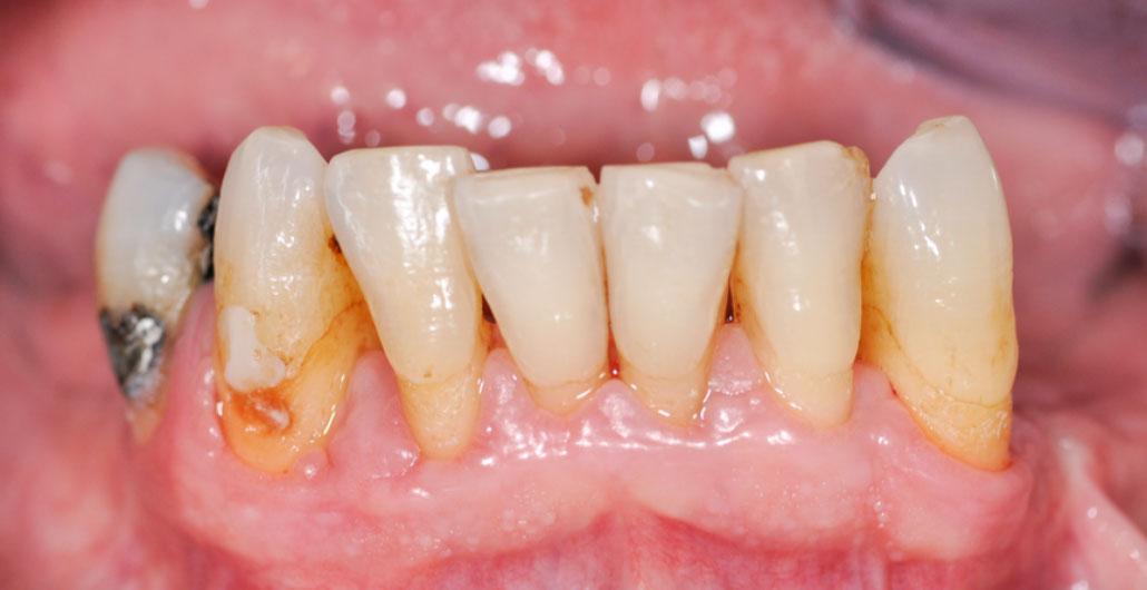 Parodontitis_Diabetes_Patient_nachher_Dr.med.Schütze