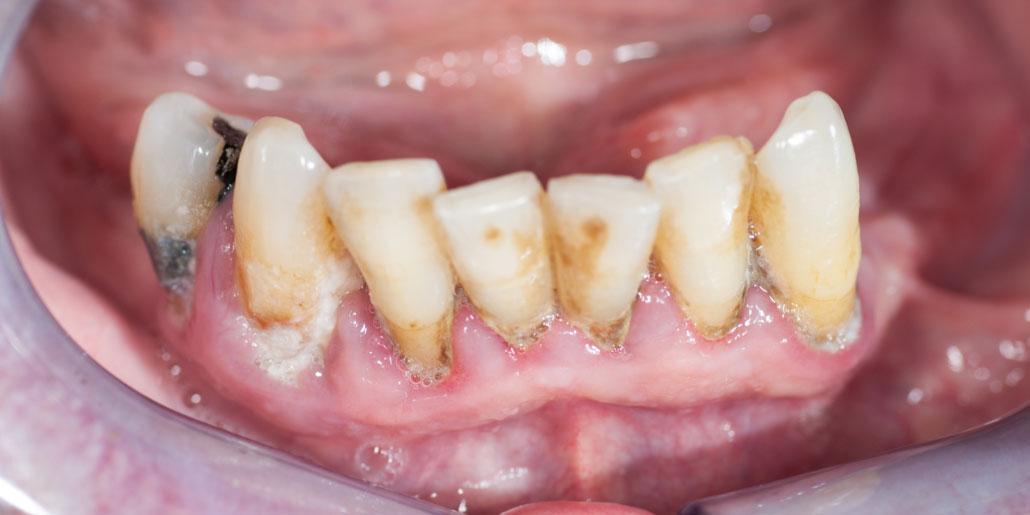 Parodontitis_Diabetes_Patient_vorher_Dr.med.Schütze