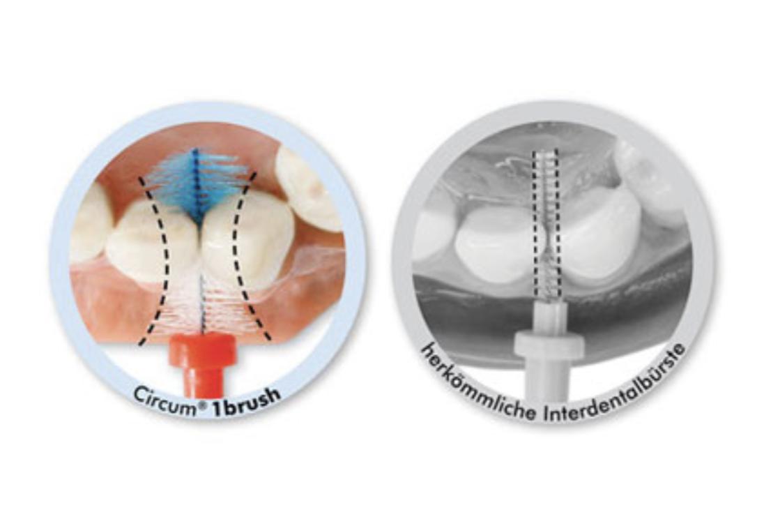 Circum®-Vergleich-drmedschuetze